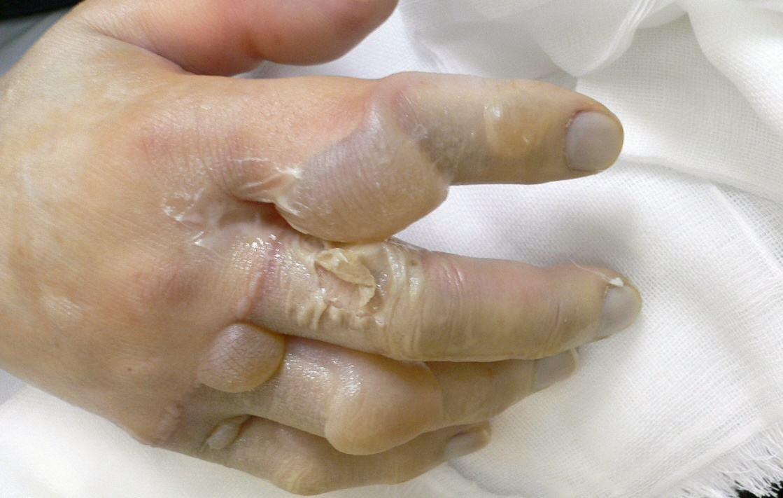 腫れる 本 かゆい が 指 一 だけ